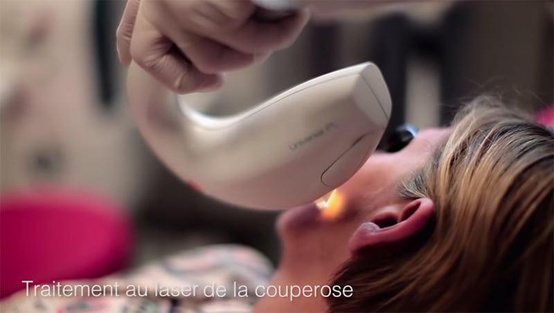 Couperose Carpentier Esthétique Rouen À Dermatologue Dr Traitement yNOw0vm8n